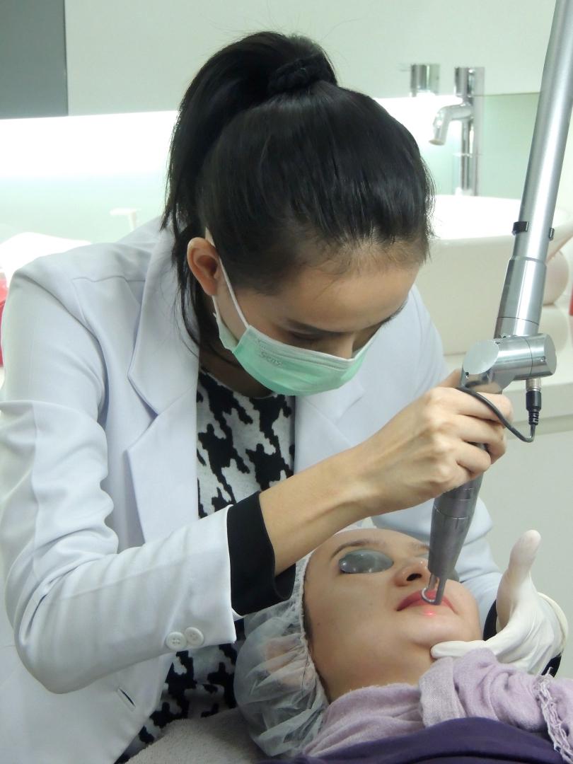 Laser Treatment 1